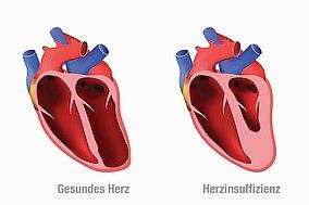 Illustration von zwei Herzen