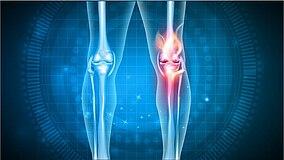 Immagine di una gamba con indicazione dell'articolazione del ginocchio