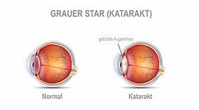 Vergleich von Abbildung eines normalen Auges und eines mit Katarakt