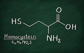 Aufzeichnung der chemischen Formel für Homocystein