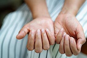 Frau zeigte ihre kaputten Fingernägel