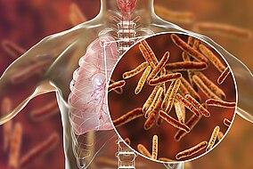 Eine Illustration von Tuberkulosebakterien