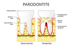 Diagramma per il confronto tra un dente con e uno senza parodontite