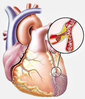 Illustration eines Herzens mit Arteriosklerose