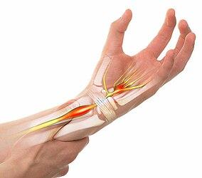 Unterarm und Hand mit Kennzeichnung des Nervensystems