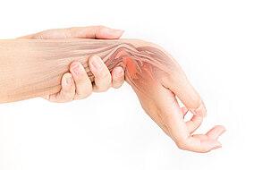 Illustrative Darstellung eines Handgelenks