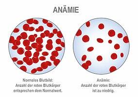 Vergleich der Anzahl der roten Blutkörper bei Anämie und einem gesunden Menschen