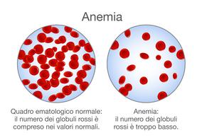 Confronto tra il numero di globuli rossi di una persona anemica e di una sana