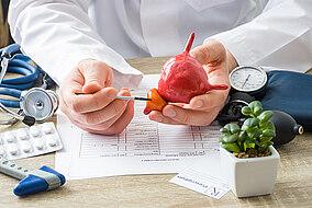 Arzt hält das Modell einer Prostata in der Hand