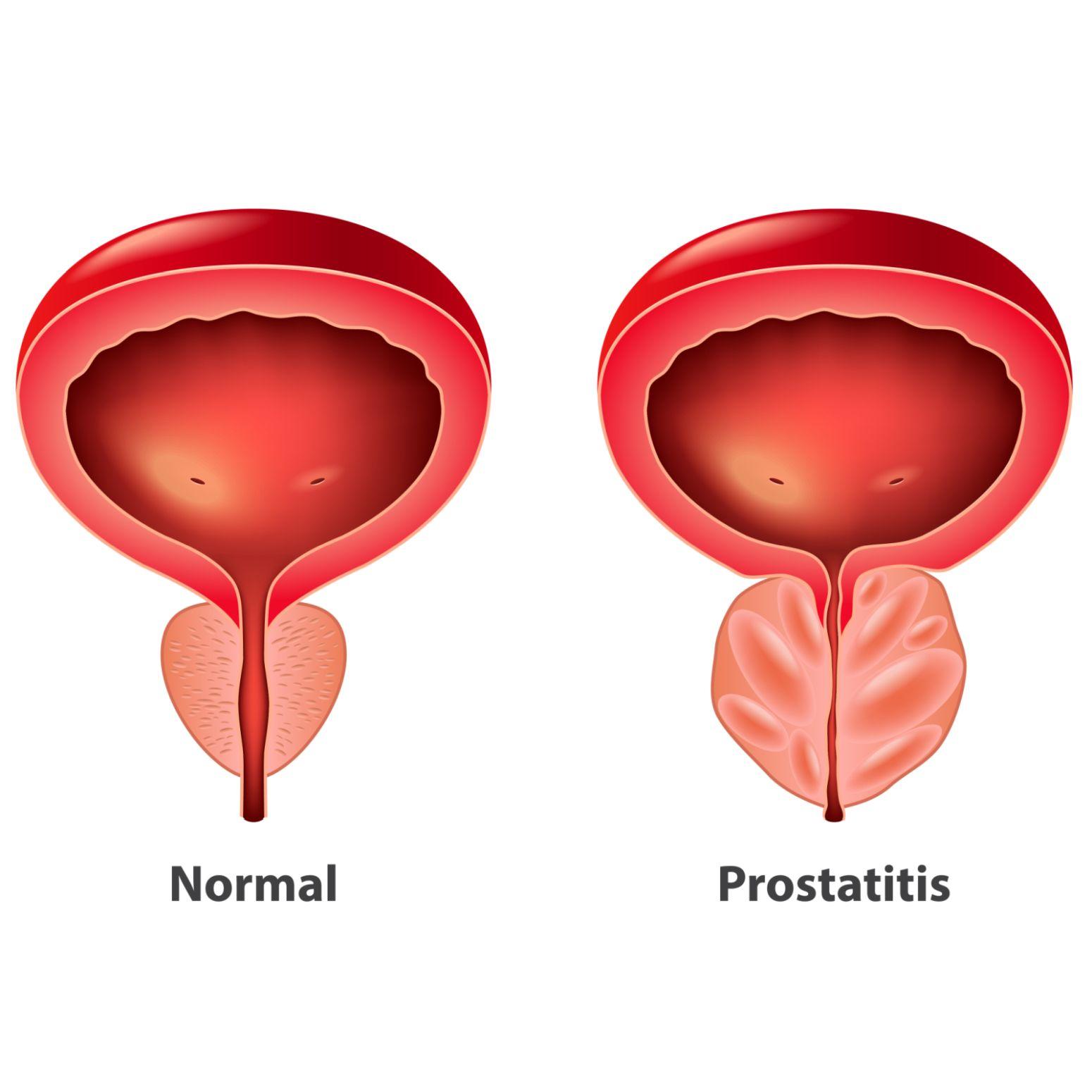 bakterielle prostataentzündung symptome