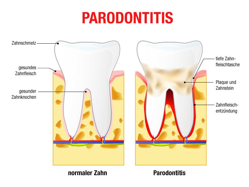 Schaubild zum Vergleich eines Zahnes mit und ohne Parodontitis