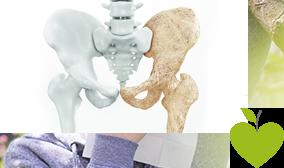 Vergleich eines gesunden und eines Osteoporose leidenen Beckens